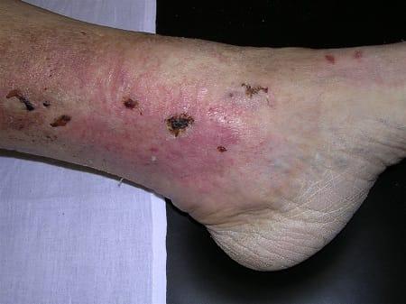 Как болят ноги при варикозе