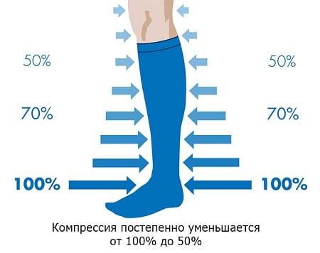 Антиварикозные чулки: как выбрать и носить